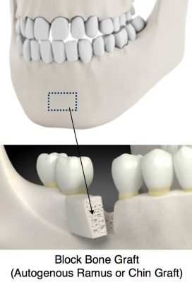 Bone Grafting Dental Implants Block Bone Graft (Autogenous Ramus or Chin Graft)