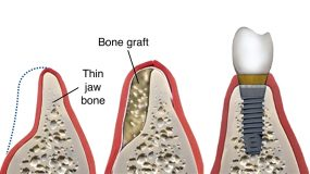 Bone Grafting Dental Implants