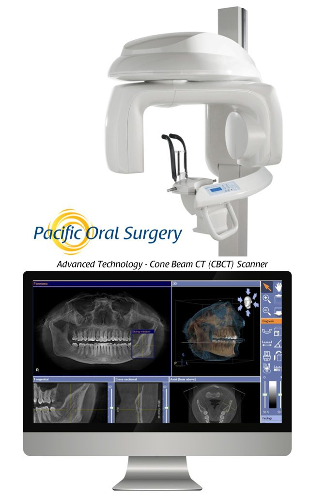Pacific Oral Surgery utilizes an on-site Cone Beam CT (CBCT) scanner