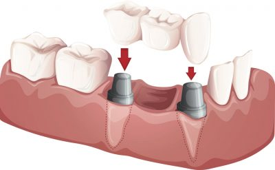 Dental implant crown is cemented to or screwed onto the abutment
