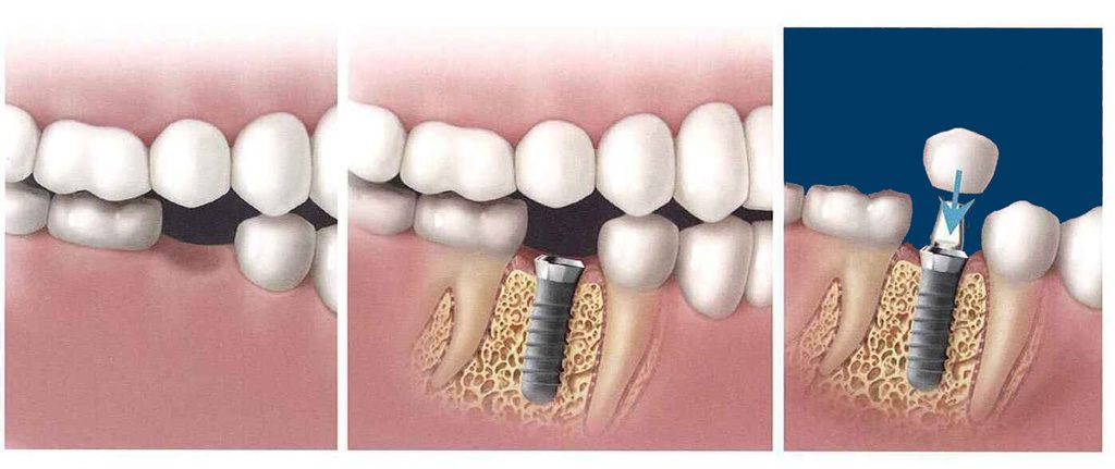 Dental implants are metal (titanium) posts which are surgically implanted into the jawbone