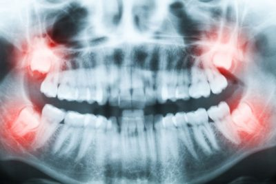 X-ray of impaction wisdom Tooth Extraction ventura