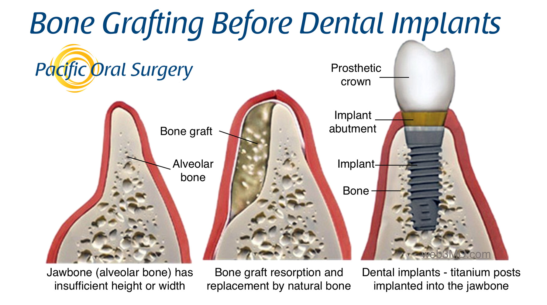 Bone Grafting for Dental Implants at Pacific Oral Surgery