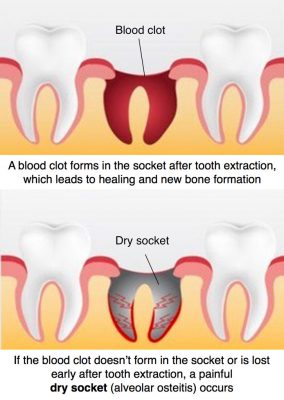 Wisdom Tooth Extraction Dry socket (alveolar osteitis)