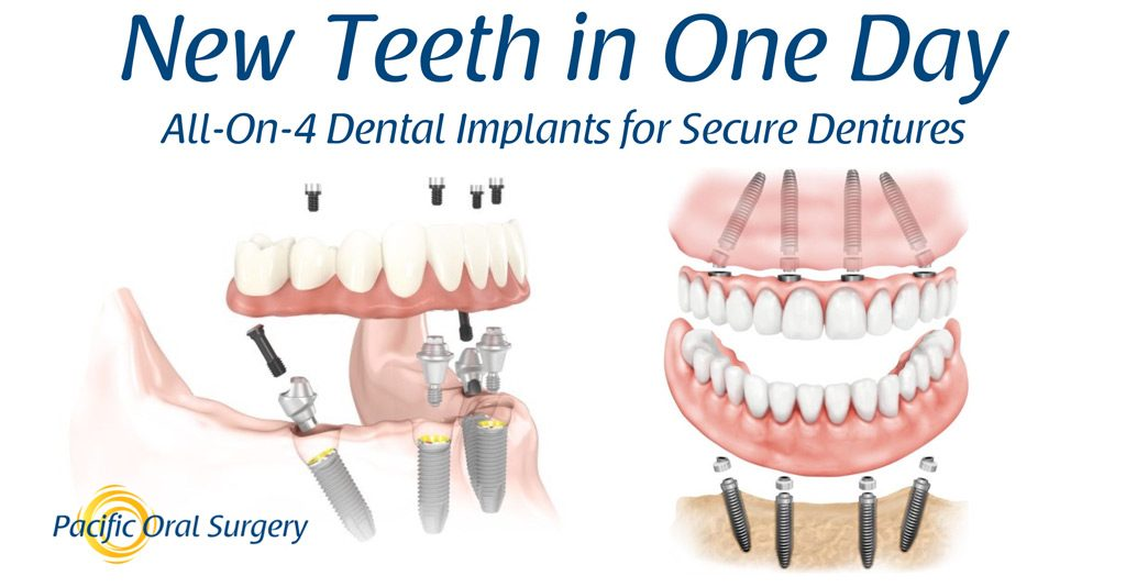 All-On-4 Dental Implants for Secure Dentures Pacific Oral Surgery