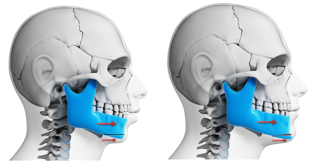 Jaw Surgery to advance the lower jaw - mandible