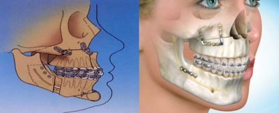 Jaw Surgery cutting the upper jaw - Maxilla
