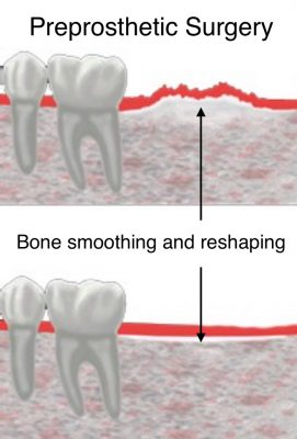 preprosthetic-surgery-bone-smoothing