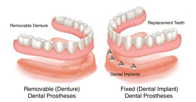 Preprosthetic surgery fixed (dental implant) or removable (denture) dental prostheses