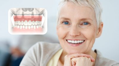 All-On-4 Dental Implants – New Teeth in One Day