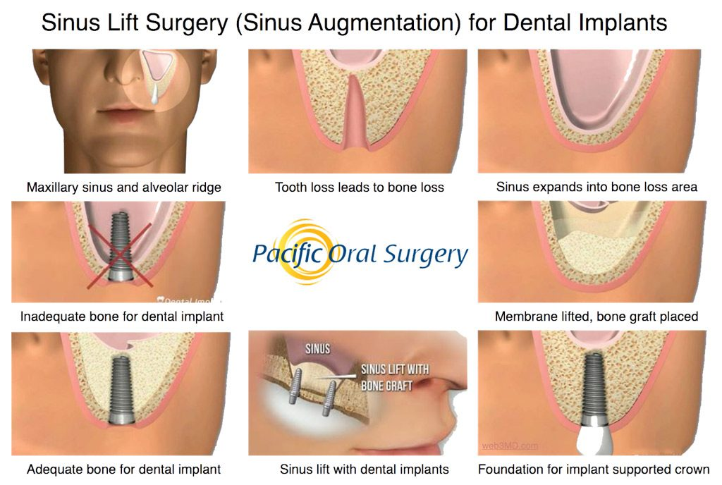 Sinus Lift Surgery for Dental Implants at Pacific Oral Surgery