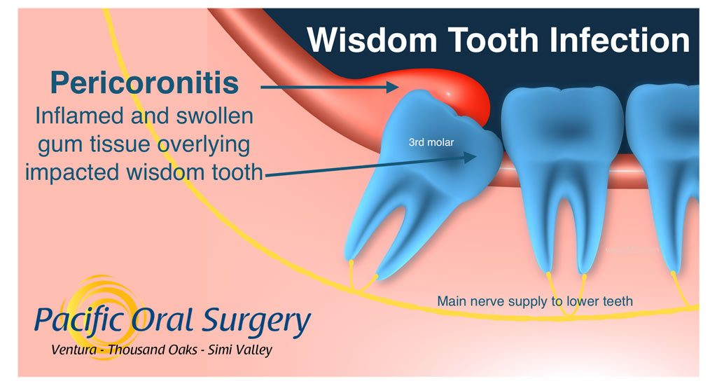 Wisdom tooth infection (pericoronitis) due to bacteria