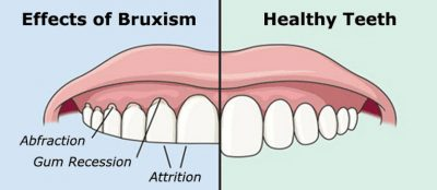 TMJ Pain from Teeth Grinding (Bruxism)