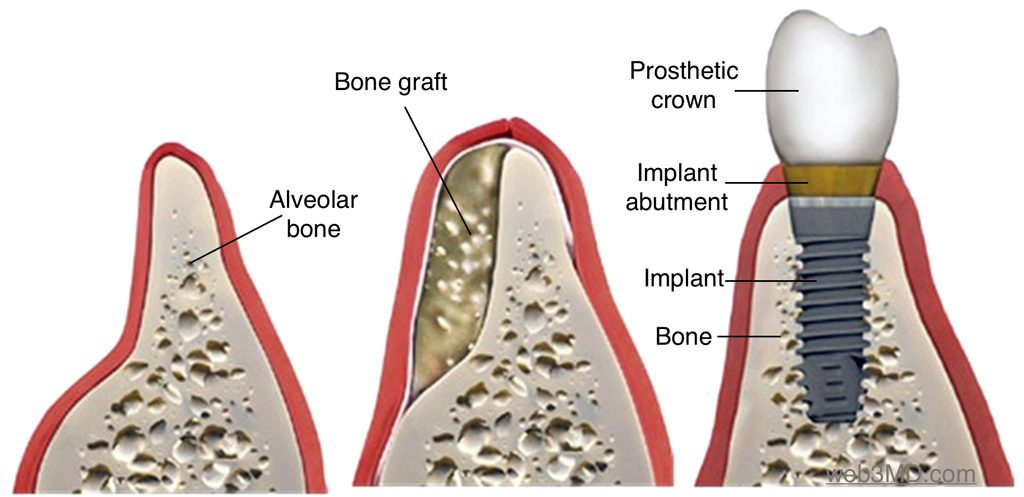Bone grafting for dental implants is a surgical procedure performed by Pacific Oral Surgeons