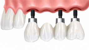 Dental implants hold a prosthetic tooth