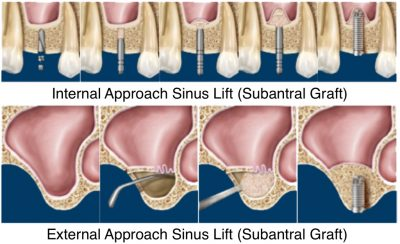 Bone Grafting for Dental Implants with Sinus Lift (Subantral Graft)