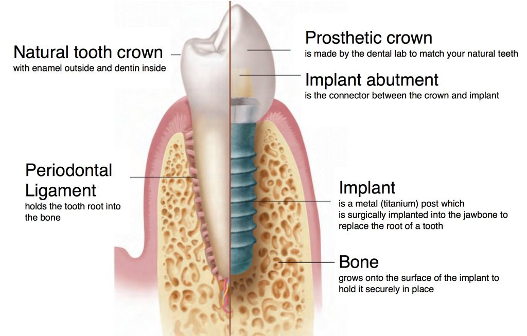 Dental implants restore missing or damaged teeth