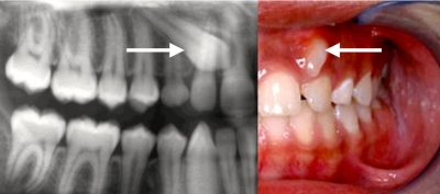 Impacted Canine Pacific Oral Surgery