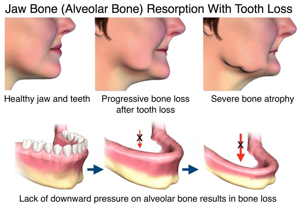 Jaw Bone Health Alveolar Bone Resorption With Tooth Loss