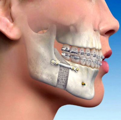 Jaw Surgery mandible that cannot be fixed by orthodontics (braces) alone