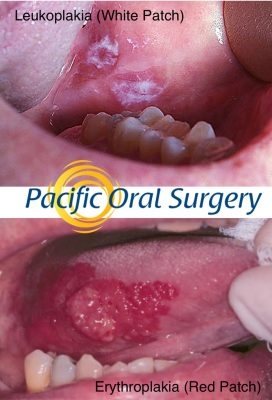 Oral pathology and cancer diagnosis at Pacific Oral Surgery