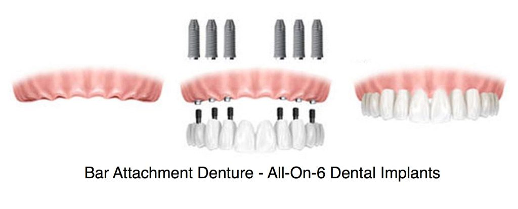 Bar attachment denture is an implant procedure with permanent prosthetic teeth