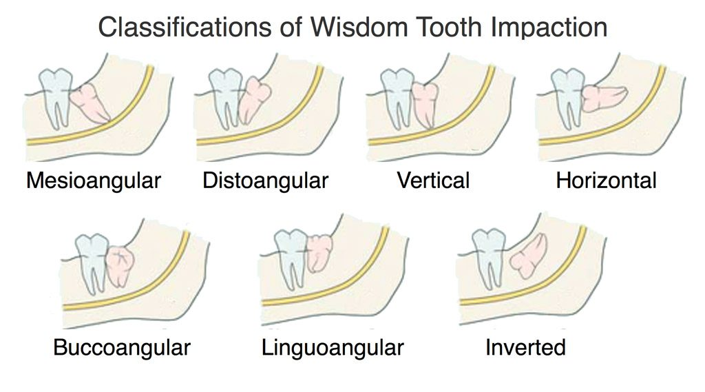 Classifications Wisdom Tooth Impaction