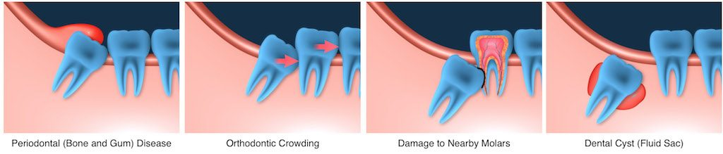 Wisdom tooth impaction and overcrowding, pain, and infection