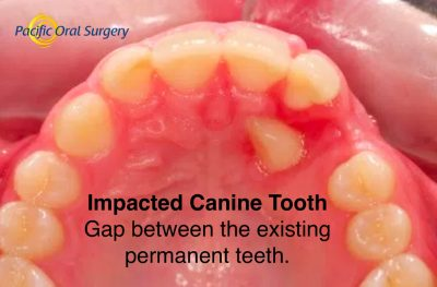 Consequences of an untreated impacted canine tooth