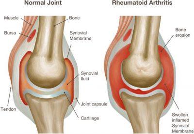 Arthritis of the Temporomandibular Joint